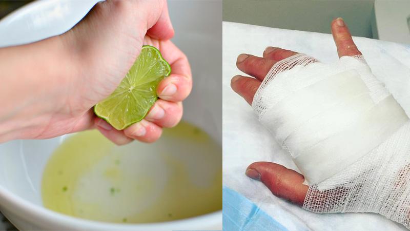 Cómo el zumo de limas puede producir quemaduras graves y qué hacer al respecto